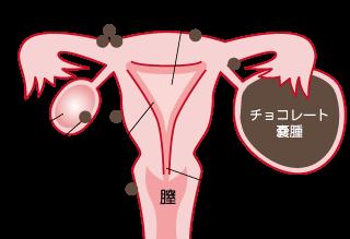 子宮内膜症 産婦人科 女性内科 麻酔科 大阪市西成区のイワタ医院