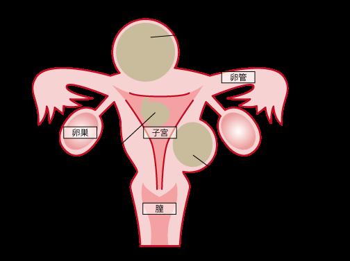 子宮筋腫 産婦人科 女性内科 麻酔科 大阪市西成区のイワタ医院
